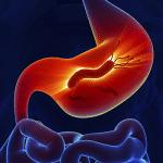 Vi khuẩn HP dương tính có nguy hiểm không?